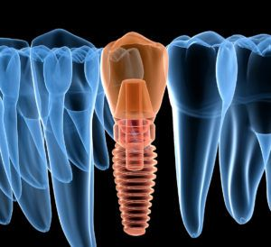 xray of a dental implant in the jaw