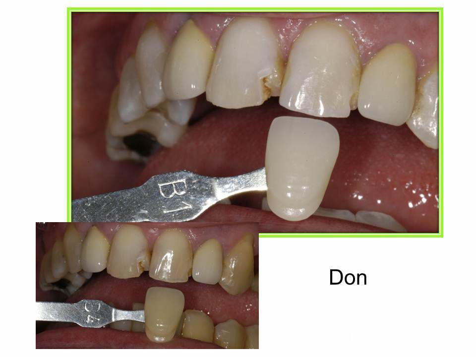 matching veneer color to tooth