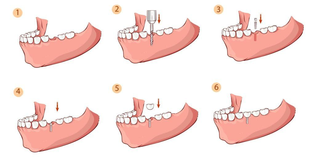 steps of dental implant placement