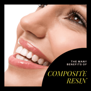 The Many Benefits of Composite Resin
