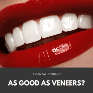 Is Dental Bonding as good as veneers3