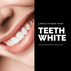 How to Keep Your Teeth White2