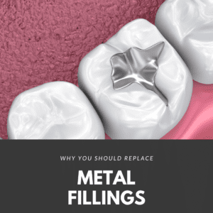 Why You Should Replace Metal Fillings