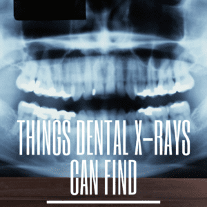 Things Dental X-Rays Can Find
