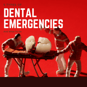 5 Types of dental emergencies and what to do