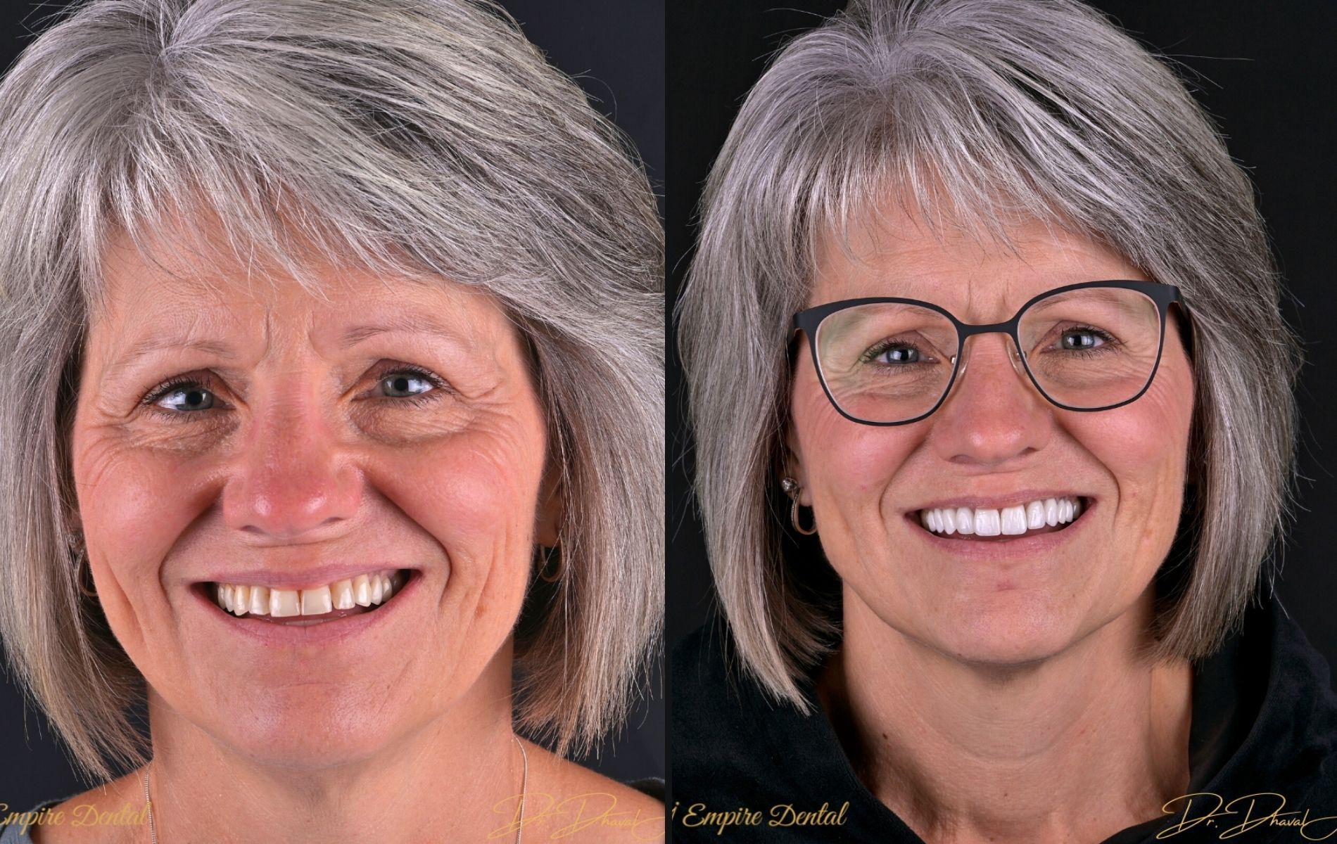 Empire Dental - Susan before and after