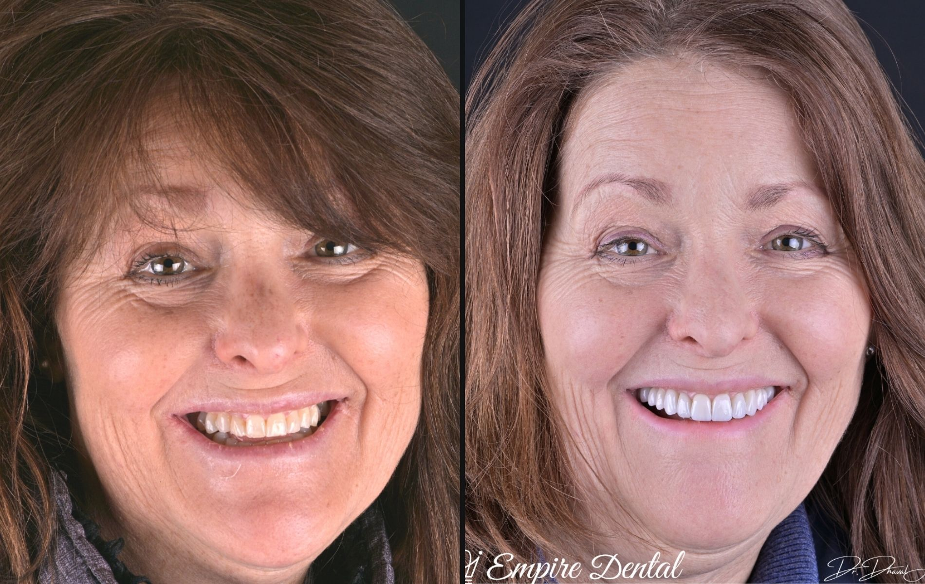 Empire Dental - Tracy before and after (1)