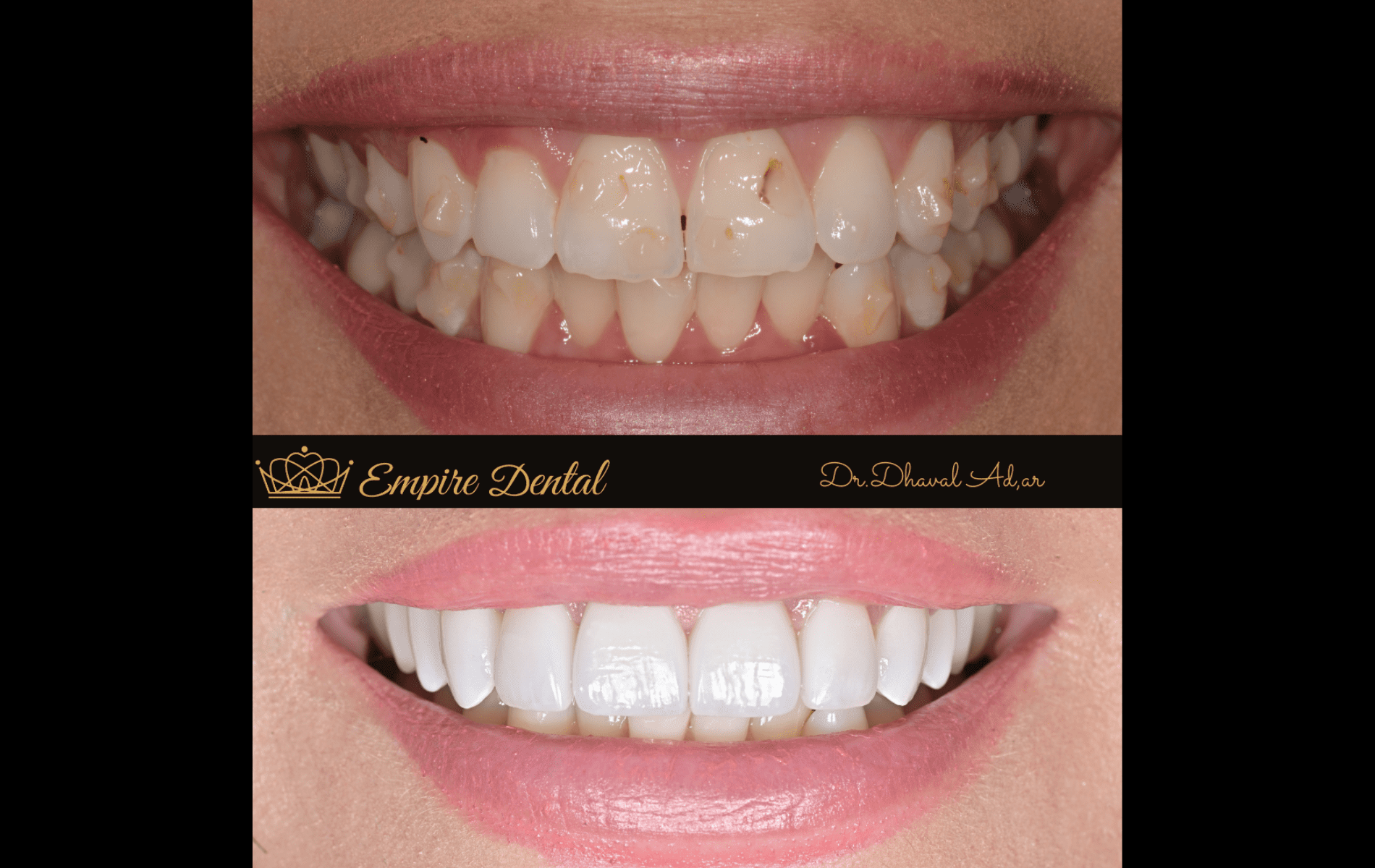 Empire Dental before and after (1)