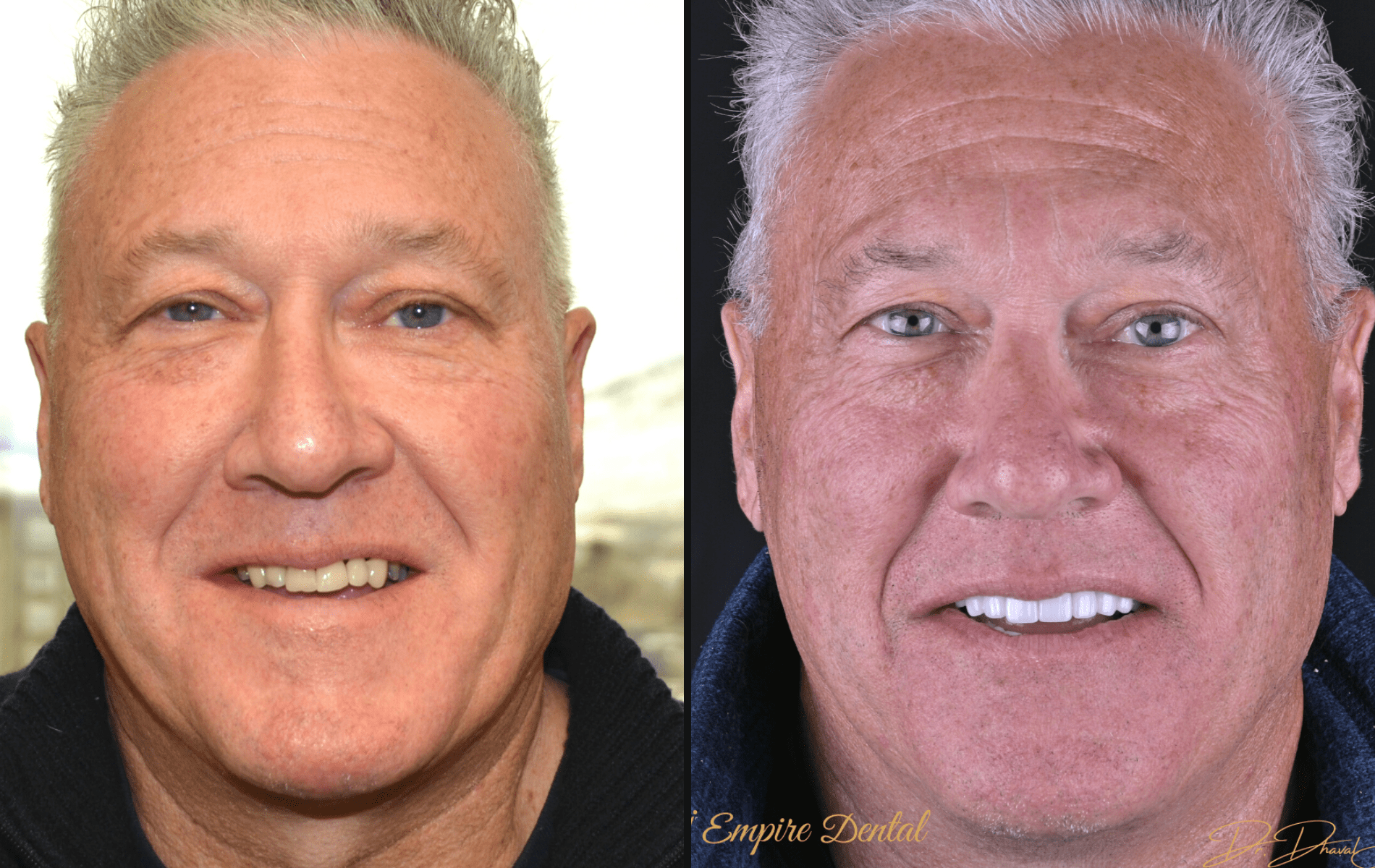 Copy of Empire Dental - Kristen before and after-min