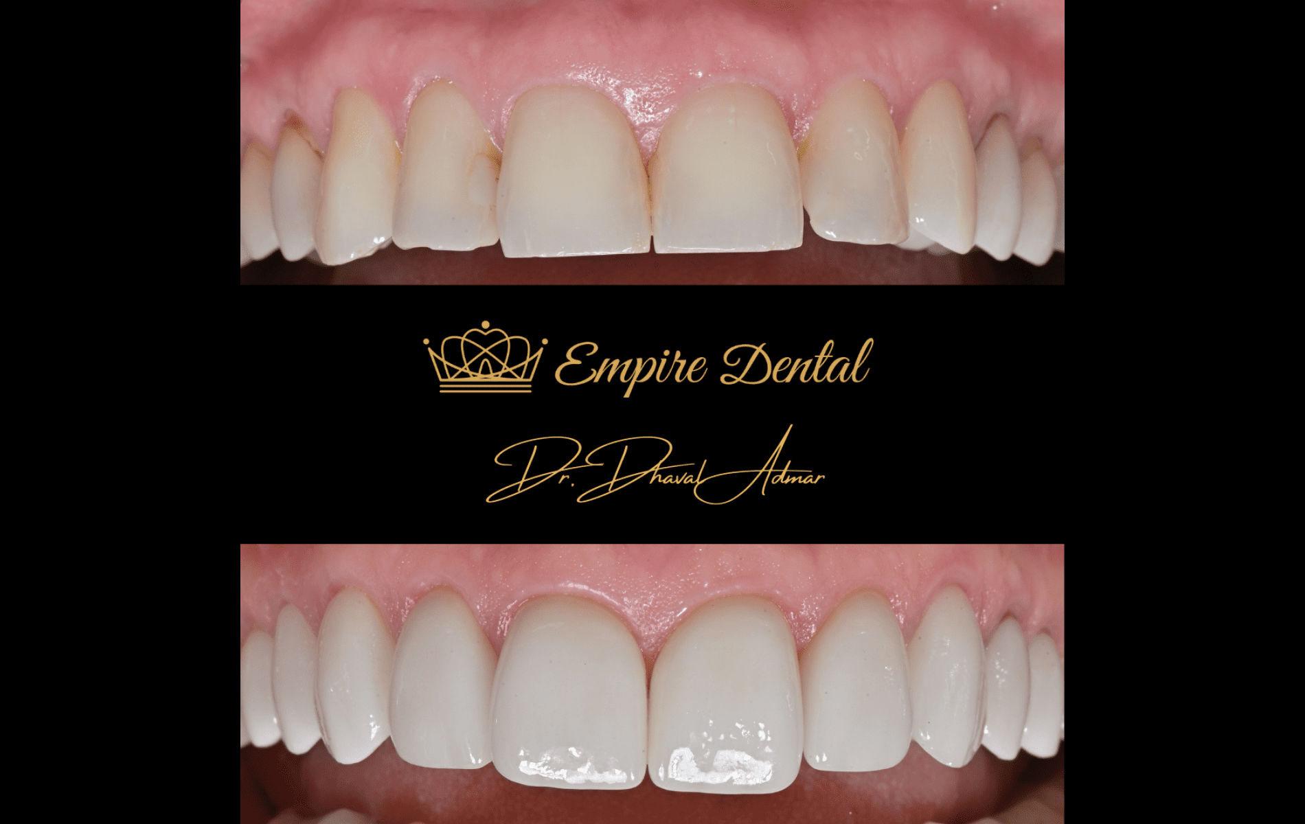 Empire Dental before and after (5)