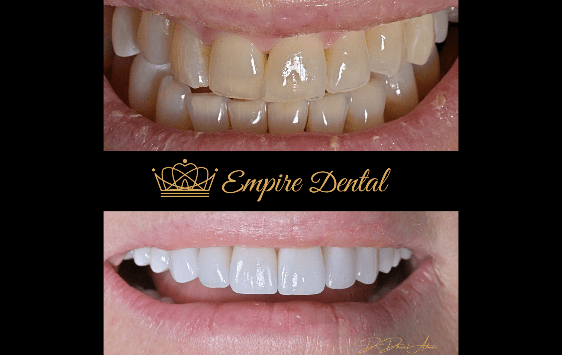 Empire Dental before and after