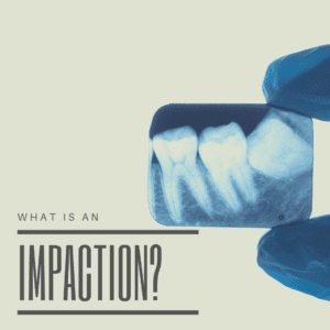 What is an impaction