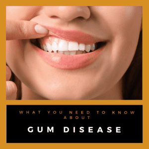 what you need to know about gum disease